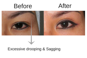 Dr Vanessa Neoh Upper Eyelid Blepharoplasty (Also Known As EyeLift) Surgery Before & After