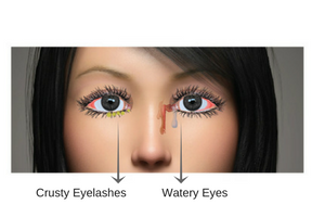 Blocked Tear Ducts, Watery eyes and Crusted eye lashes illustration by Dr VAnessa Neoh