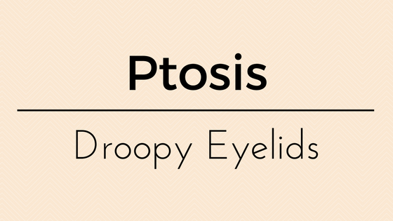 Ptosis Droopy Eyelid Dr Vanessa
