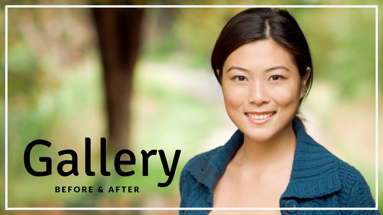 Before and after surgery patient gallery pictures