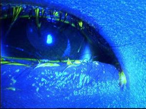 Lashes rubbing against the cornea