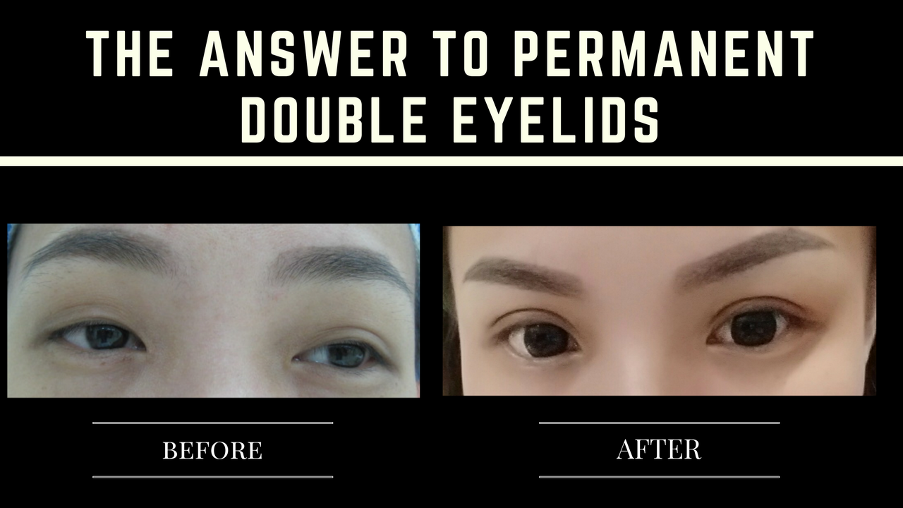 The answer to permanent double eyelid - Double eyelid surgery