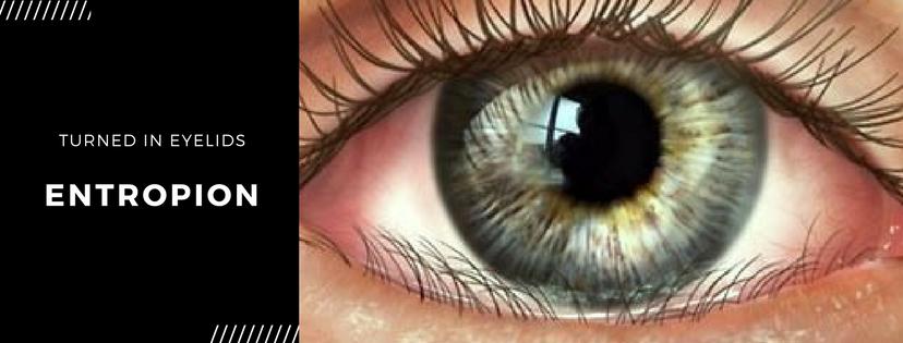 Entropion illustration - Turned In Eyelids (1)