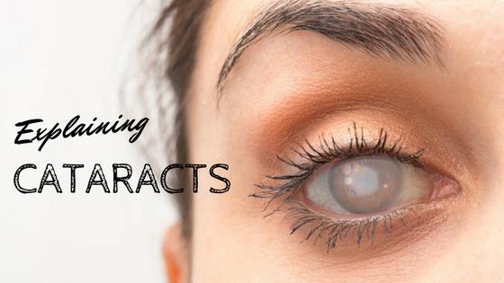 Explaining Cataracts