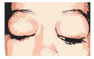eyelid and orbital cancer example - bulging eyes