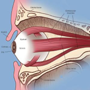 orbital tumours